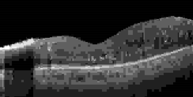 Image of retina 1 week after epiretinal membrane surgery