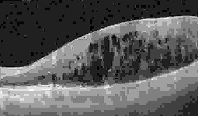 Image of a retina that developed an epiretinal membrane