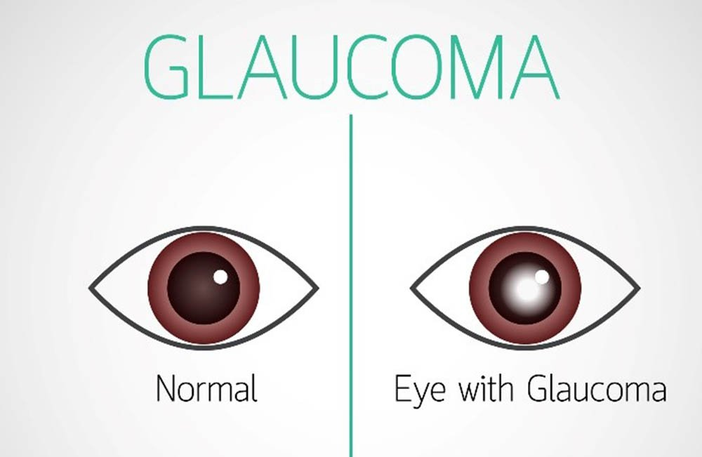 Normal eye and eye with glaucoma