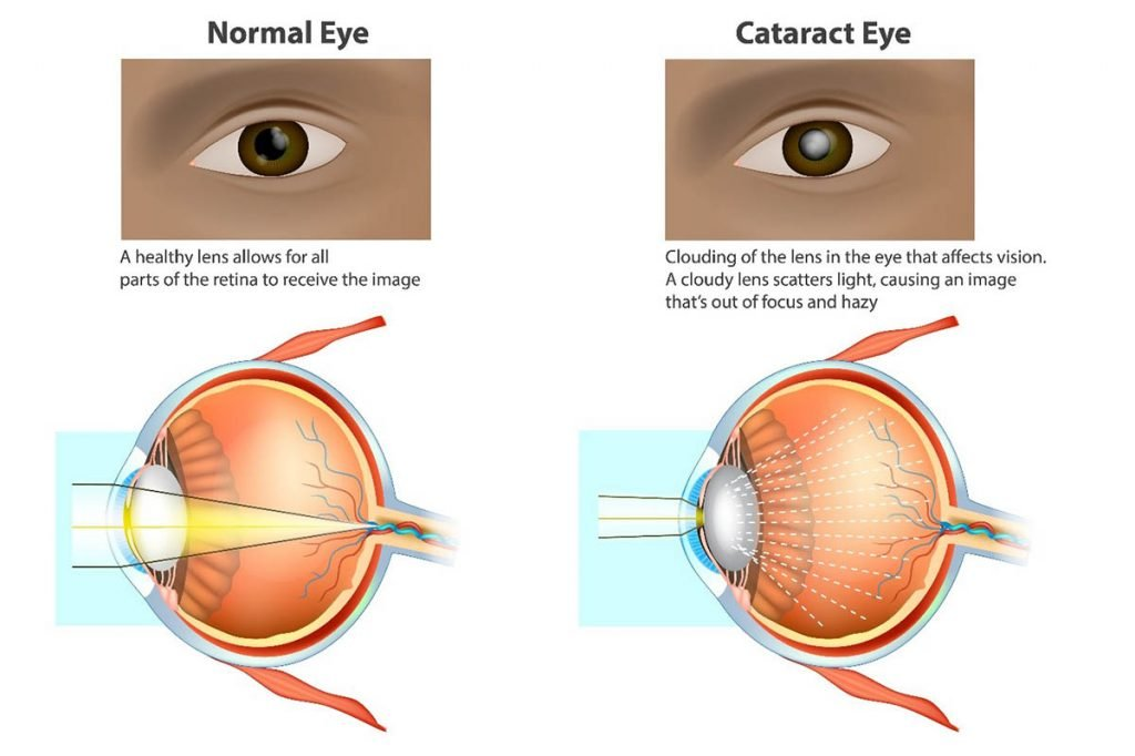 Healthy eye and eye with cataract