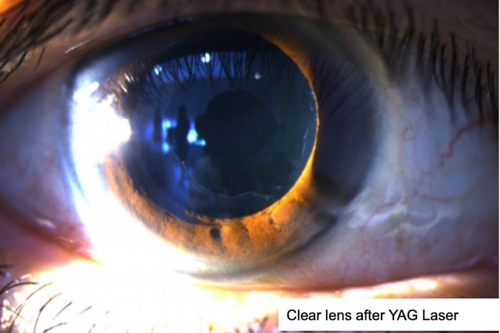 Picture of a patient eyes after YAG laser